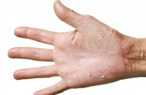 Tips voor droge huid in de winter