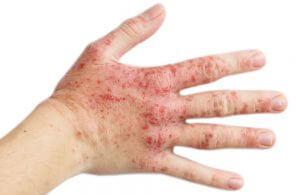 Contacteczeem is een huidaandoening