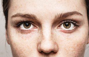 Luchtvervuiling en je huid
