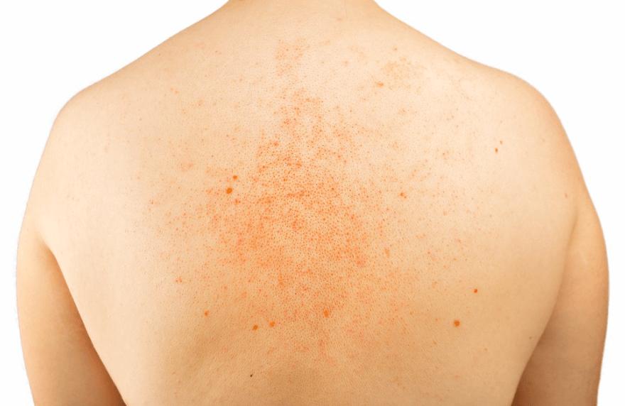 Zonneallergie