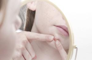 Onzuiverheden bij de gevoelige huid